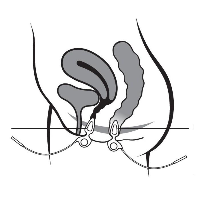 Body Clock Anuform - anální  a vaginální sonda proti inkontinenci